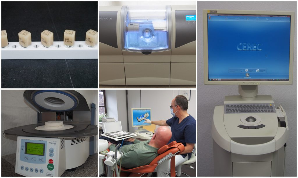 Bilder zun CEREC - 3D System