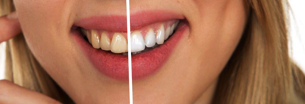 Bild gebleichte Zähne